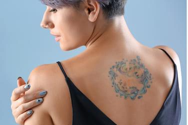 Eliminar tatuajes antes y después