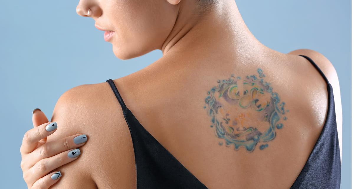 Eliminar tatuajes Guadalajara